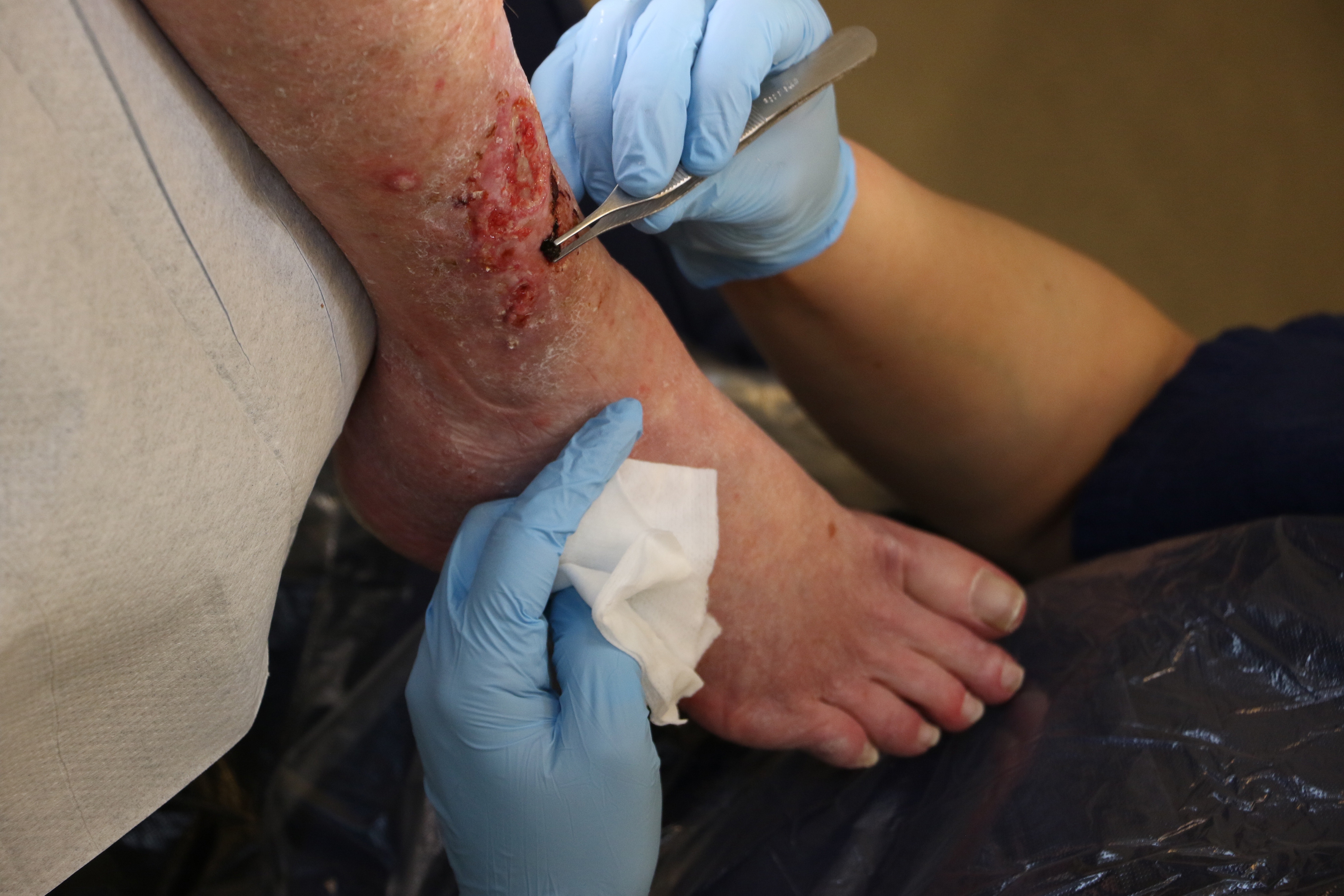 Pressure, Vascular or Diabetic Wounds - Does Type Matter? - Recorded
