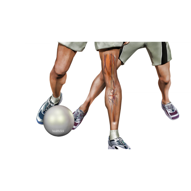Lower Extremity Education