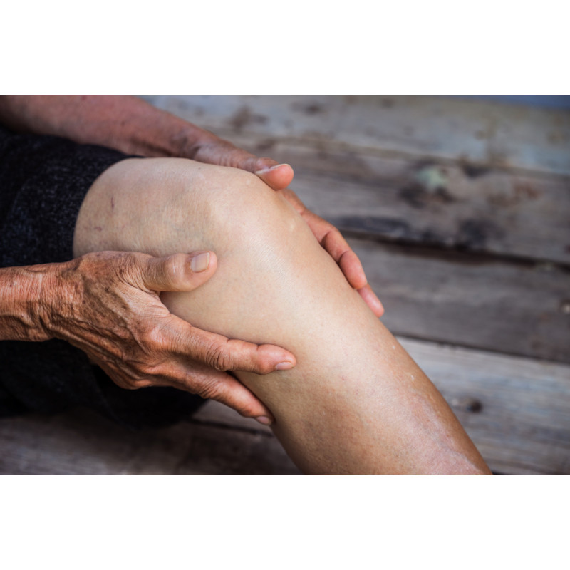 Why the Best Total Knee Replacement Recovery Might Not Be Rehab