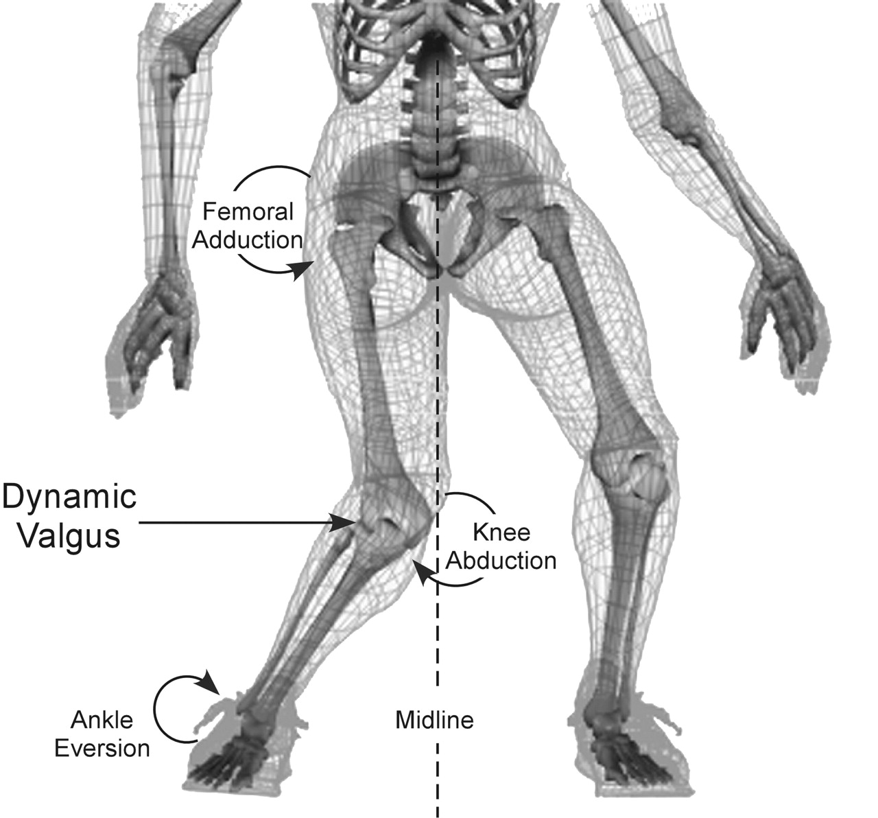Thera-Band exercise program can improve lower limb biomechanics in ...