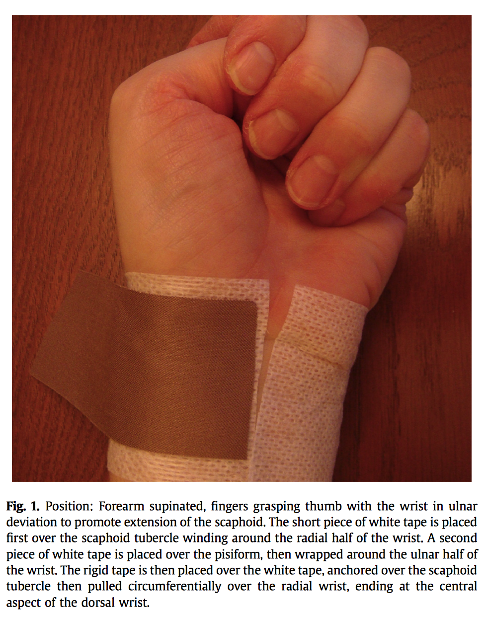 Two Ways To Tape The Wrist Rigid Tape And Kinesiology Tape