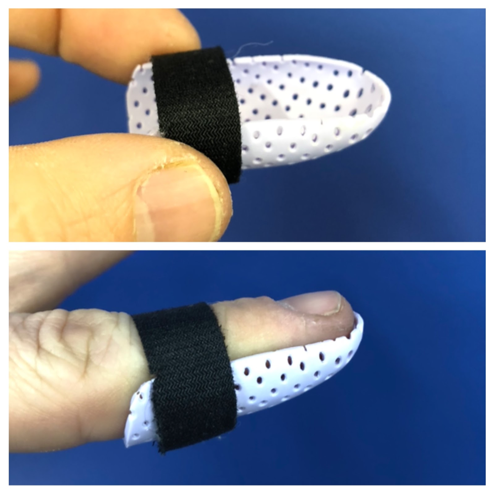 Finger Strap Splint