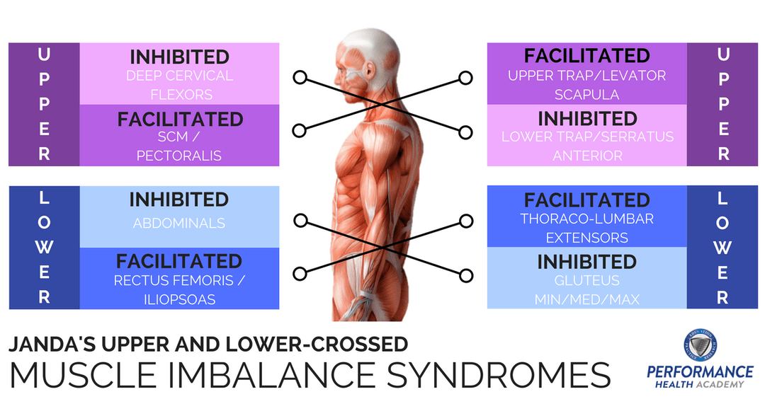 Lower-Crossed Syndrome